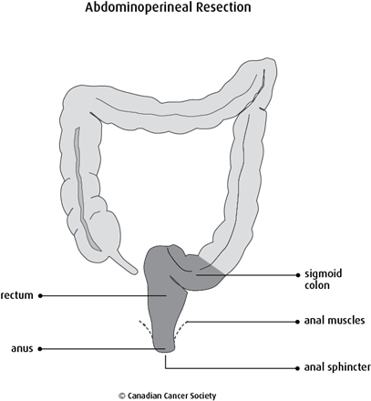 Diagram of abdominoperineal resection