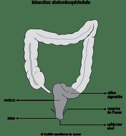 Résection abdominopérinéale