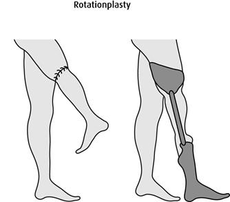 Rotationplasty