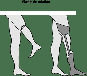 Schéma de la plastie de rotation