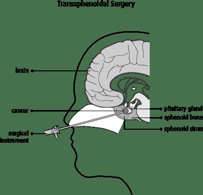 Diagram of transsphenoidal surgery