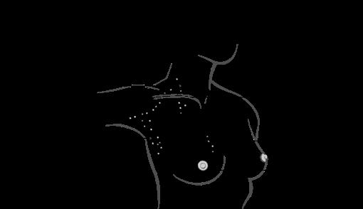 Diagram of breast lymph nodes