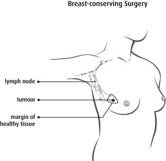 Diagram of breast conserving surgery