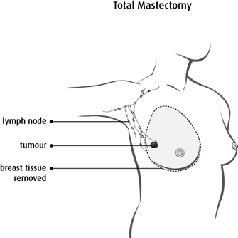 Diagram of a total mastectomy
