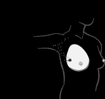 Schéma de la mastectomie totale