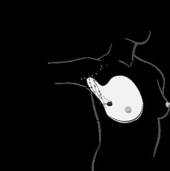 Schéma de la mastectomie radicale modifiée