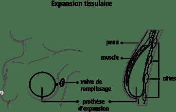 Schéma de l'expansion tissulaire