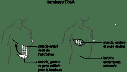 schéma d'un lambeau TRAM