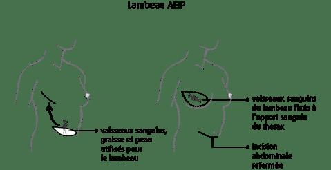 schéma d'un lambeau AEIP