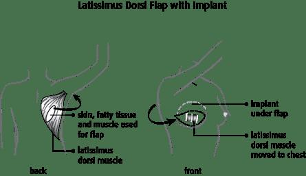 diagram of a latissimus dorsi flap with implant