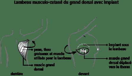 schéma d'un lambeau musculo-cutané du grand dorsal avec implant