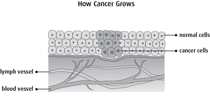 Diagram of how cancer grows