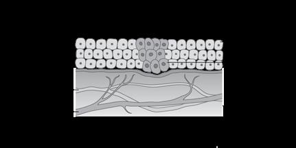 Schéma de la façon dont le cancer se développe