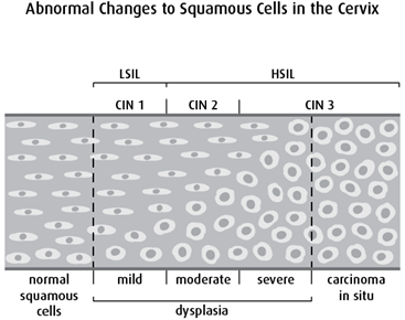 Diagram of abnormal changes to squamous cells in the cervix