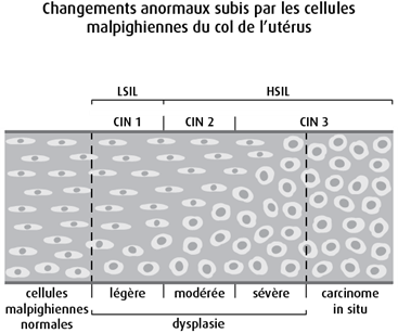 Schéma des changements anormaux subis par les cellules malpighiennes du col de l'utérus
