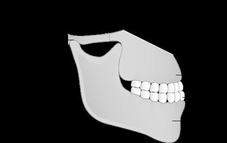 Schéma des dents et des mâchoires