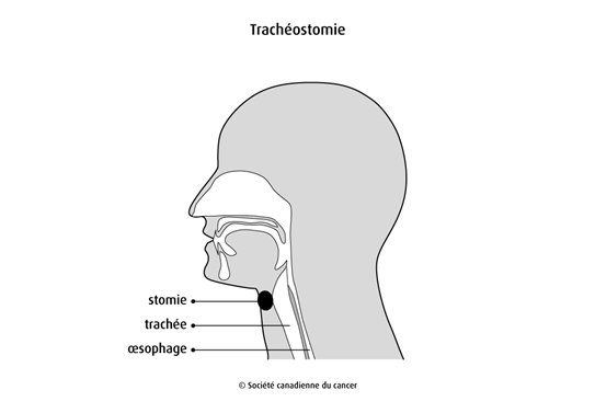 Schéma de la trachéostomie