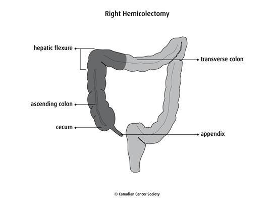 Diagram of a right hemicolectomy