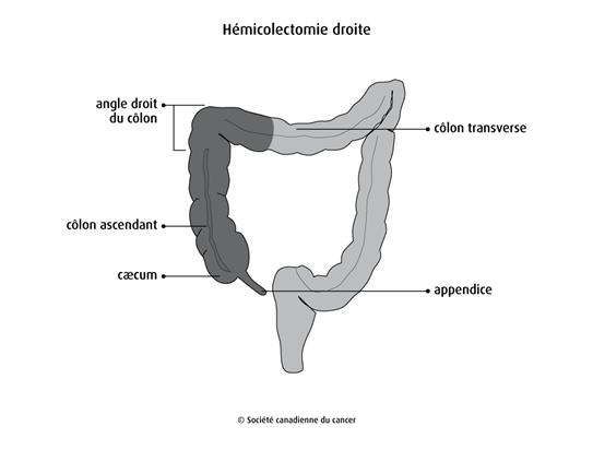 Hémicolectomie droite