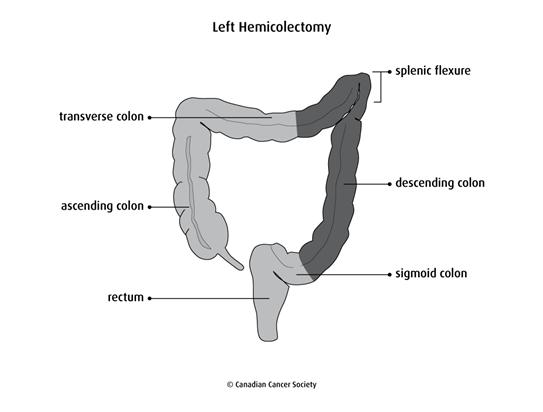 Diagram of a left hemicolectomy