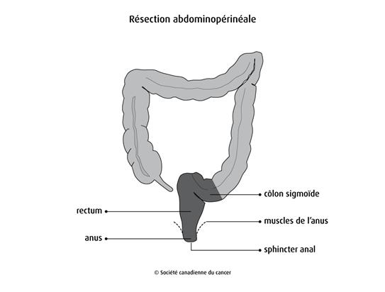 Schéma de la résection abdominopérinéale