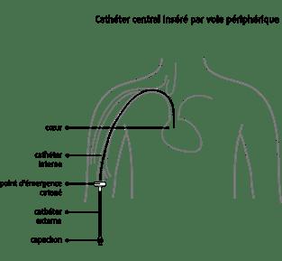 Cathéter central inséré par voie périphérique