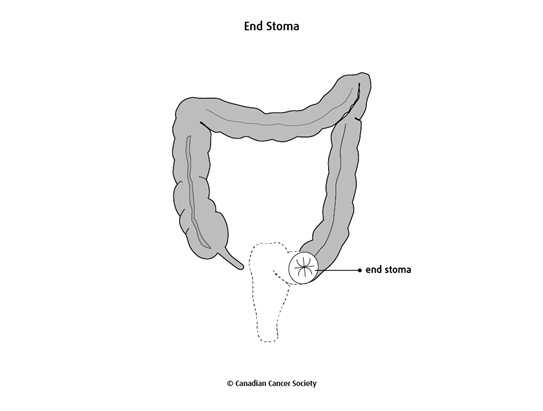 Diagram of an end stoma