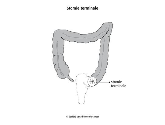 Schéma de la stomie terminale