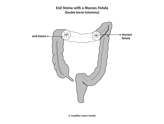 Diagram of an end stoma with a mucous fistula