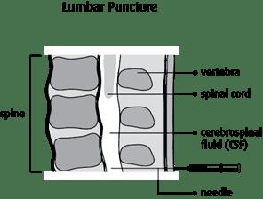 Graphic of lumbar puncture