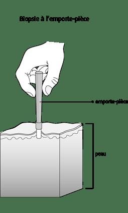 Biopsie à l'emporte-pièce