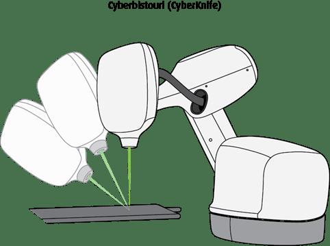 Schéma du cyberbistouri, ou CyberKnife
