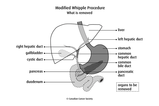 Diagram of Modified Whipple Procedure and what is removed