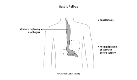 Diagram of a gastric pull-up