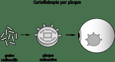 Schéma de la curiethérapie par plaque