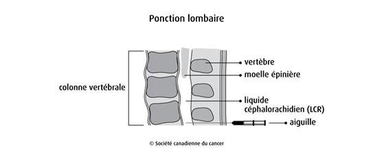 Schéma de la ponction lombaire
