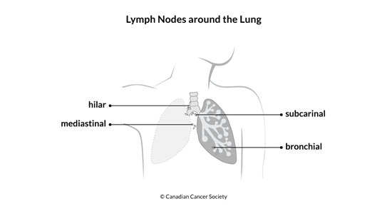Diagram of the lymph nodes around the lung
