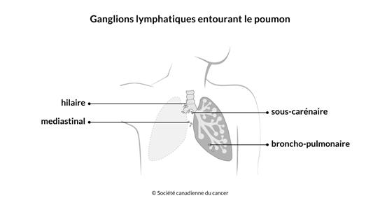 Schéma des ganglions lymphatiques entourant le poumon