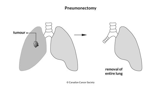 Diagram of a pneumonectomy