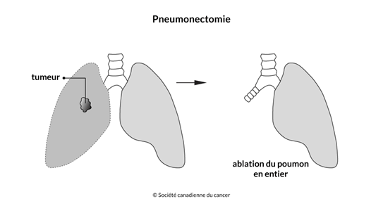 Schéma d'une pneumonectomie