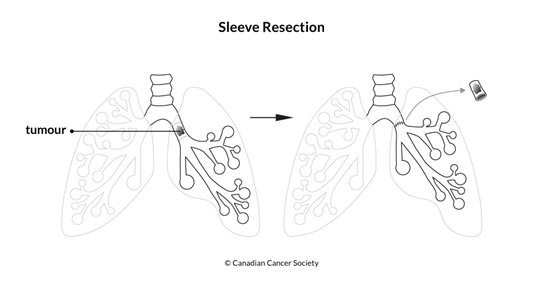 Diagram of a sleeve resection