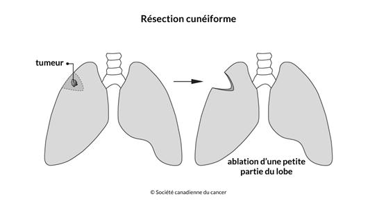 Schéma de la résection cunéiforme