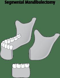 Diagram of segmental mandibulectomy