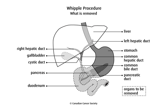 Diagram of Whipple Procedure what is removed