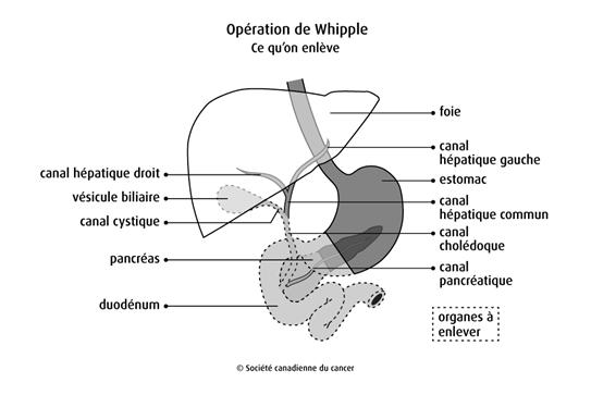 Schéma de l'opération de Whipple