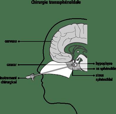 Schéma de la chirurgie transsphénoïdale