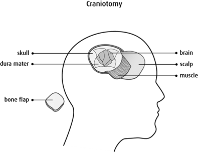 Diagram of a craniotomy
