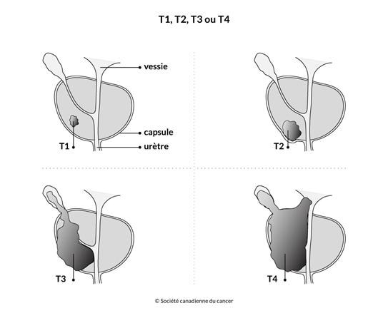 Schéma de T1, T2, T3 ou T4