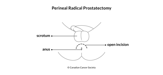 Diagram of perineal radical prostatectomy