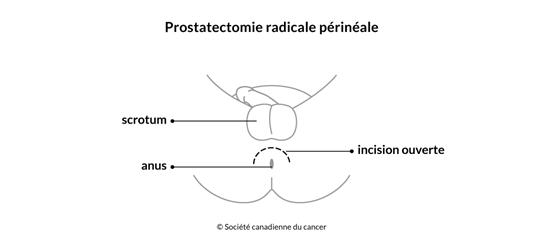 Schéma de la prostatectomie radicale périnéale